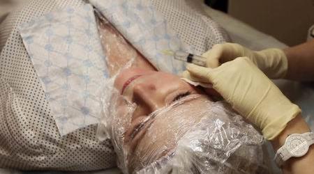 Биоревитализация лица и шеи