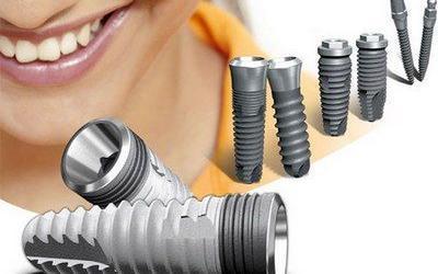 Имплантация зубов. Противопоказания