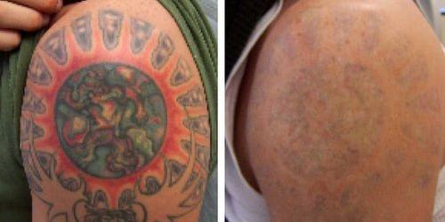 Удаление татуировки посредством неодимового лазера